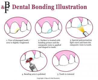 Waukesha dental bonding treatment iIllustration