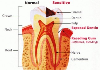 understanding tooth sensitivity_illustration
