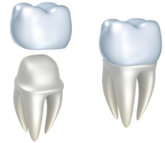 Waukesha Dental Crowns-2