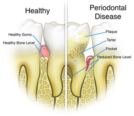 preventative periodontal disease dentists in Waukesha WI