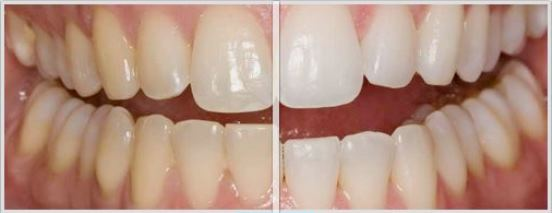 Teeth whitening before and after pictures